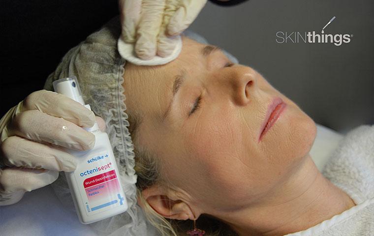 Kosmetisches Microneedling Schritt 1