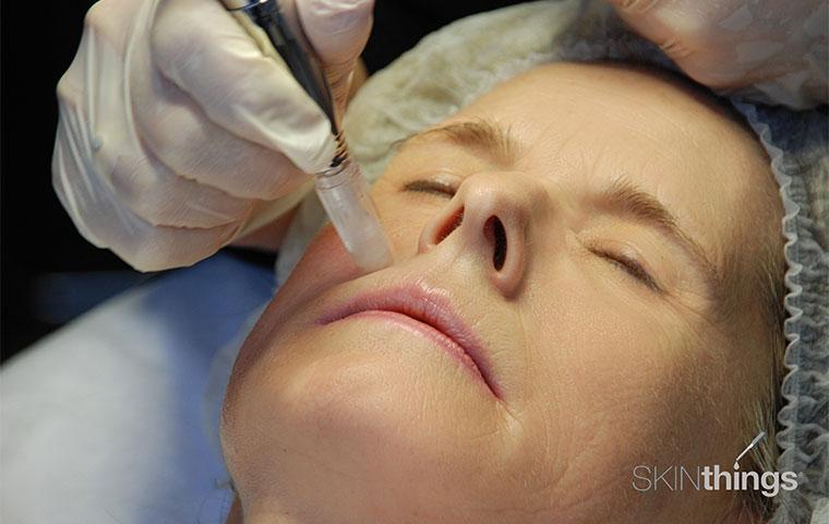 Kosmetisches Microneedling Schritt 2