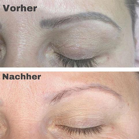 Vorher - Nachher Behandlung - 02